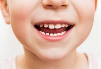 子どもの歯の矯正費用、医療費控除の対象になる?ならない?