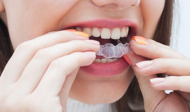歯の矯正は医療費控除の適用になる? 対象となる条件とは