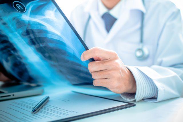 がん保険を選ぶのなら「一時金タイプ」? それとも「治療実績タイプ」?