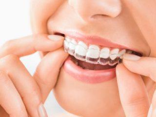 マスク生活の今こそ歯列矯正の始めどき? 実際にかかった治療費や矯正期間はどれくらい?
